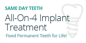 All-On-4 Implant Treatment
